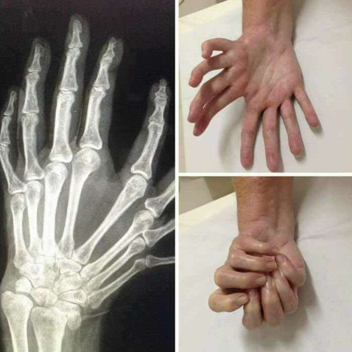 An unusual hand. .