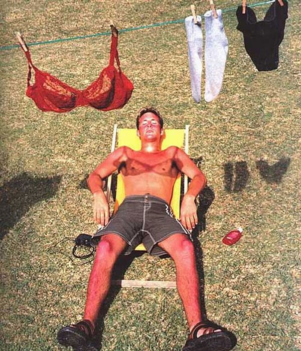 really bad sunburn. .. its the tan line he should worry about..lol