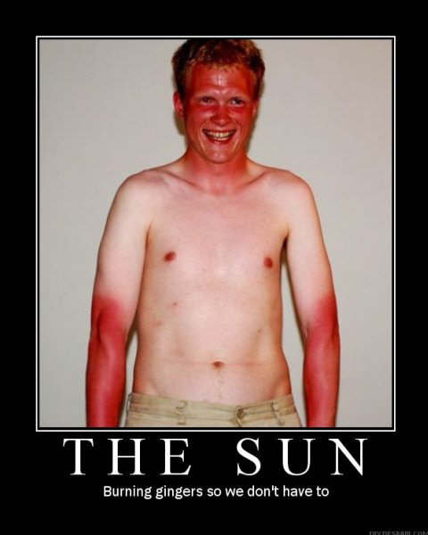 Thank You Mr Sun. . Burning .l: SD we BIN, have to. lol, he looks like a redneck and IS a redneck literally XD