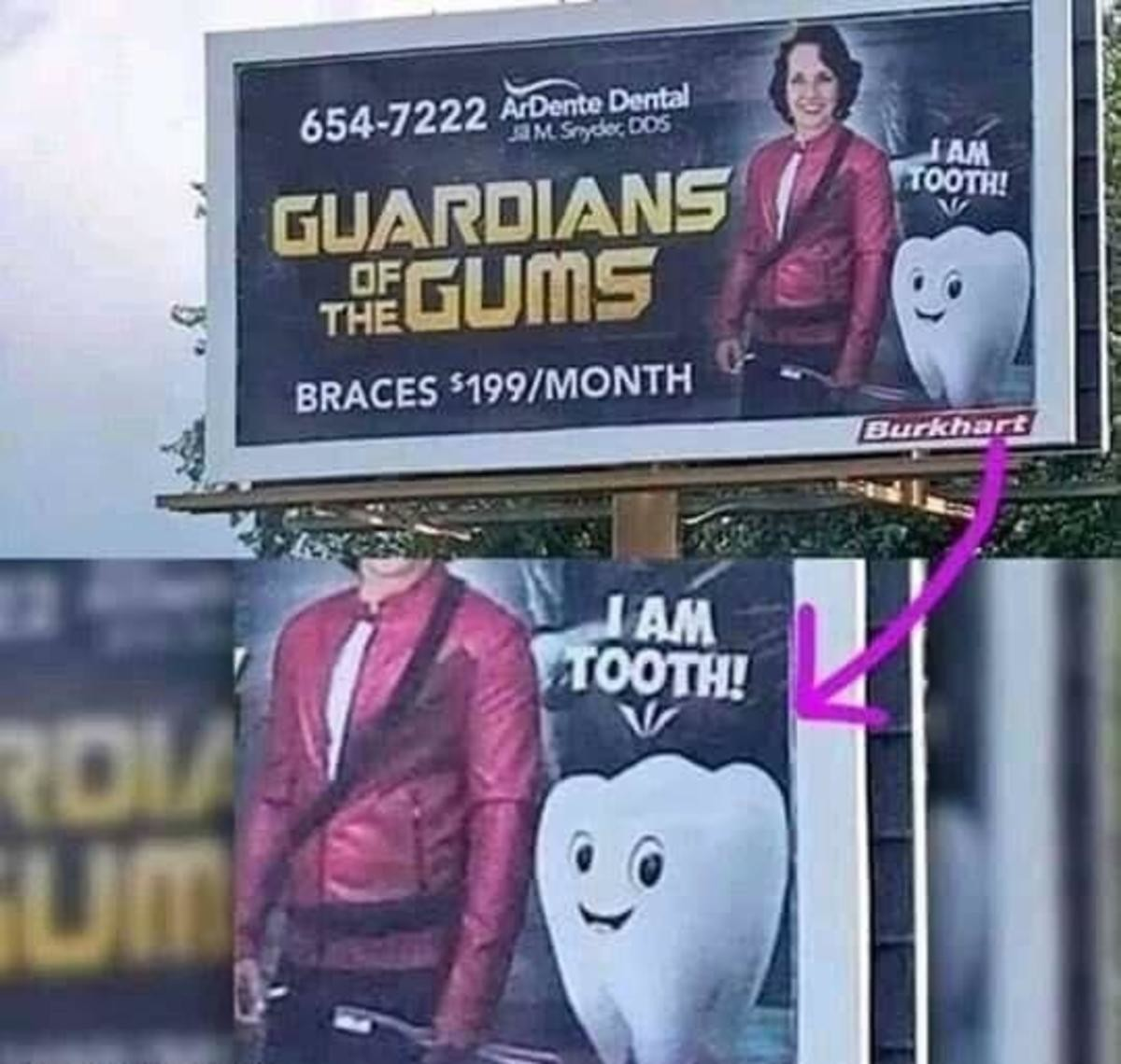 Toof. .. You have to rent your braces?